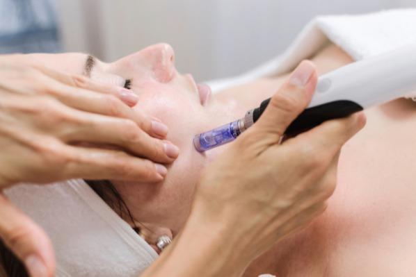 Micro Needling Nadeln - Derma-Profis-Discount